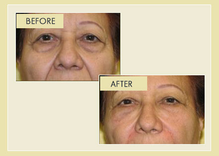 Facial Rejuvenation - Non-Surgical Blepharoplasty