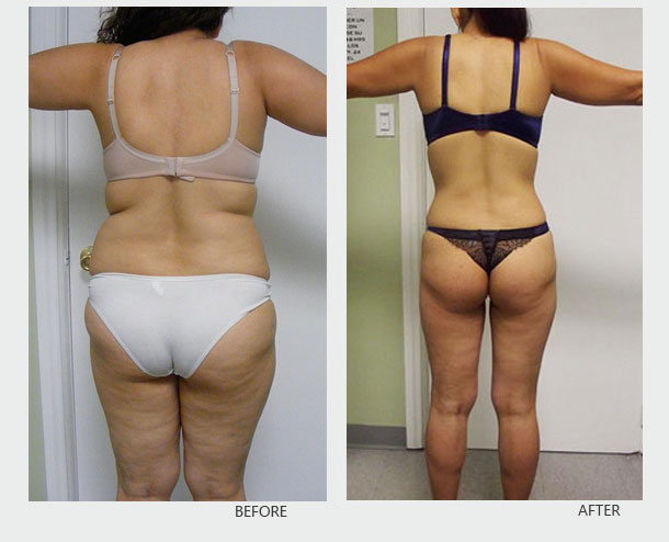 Images of Squats Before After Two Weeks - #rock-cafe
