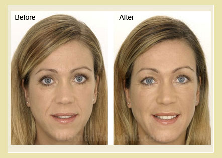 Restylane Treatment