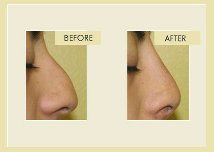 Facial Rejuvenation - Rinoplasty